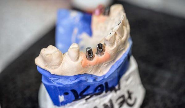 dental-implants-PCUTWRZ (1)